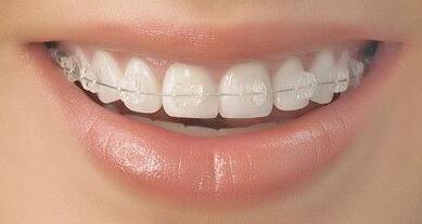 儿童矫正牙齿的最佳年龄,如何矫正牙齿